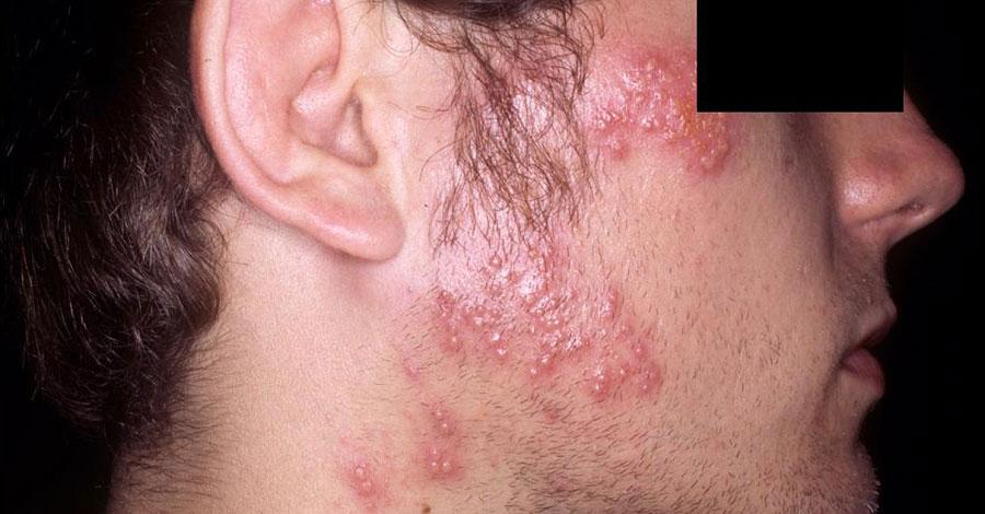 Herpes Gladiatorum ou Scrumpox